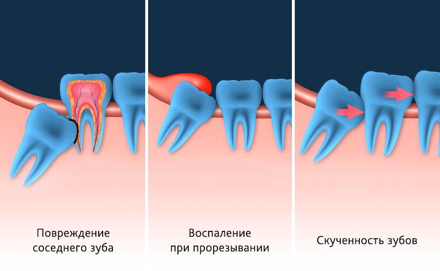 Показания для удаления зуба мудрости