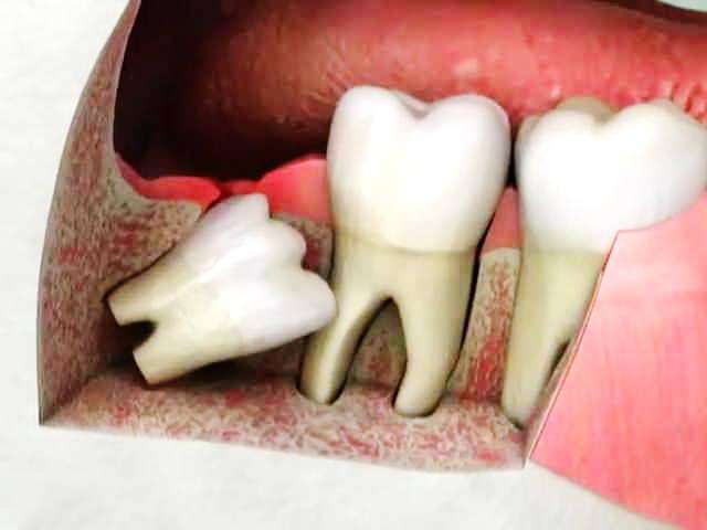 Растущий зуб упирается в соседний