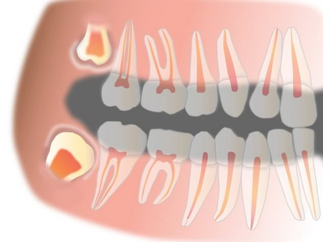 Зубы мудрости в верхней и нижней челюстях
