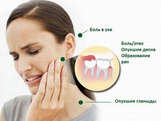 Виды боли при прорезании зубов