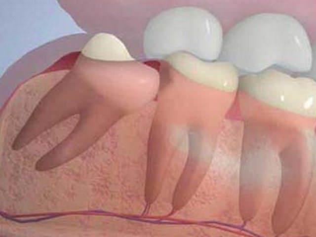 Зуб мудрости давит на соседние зубы