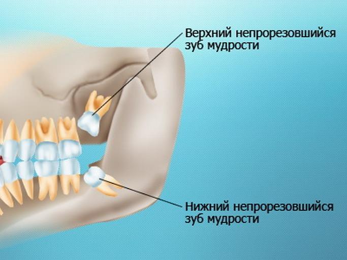 Схематично показано, где находятся зубы мудрости