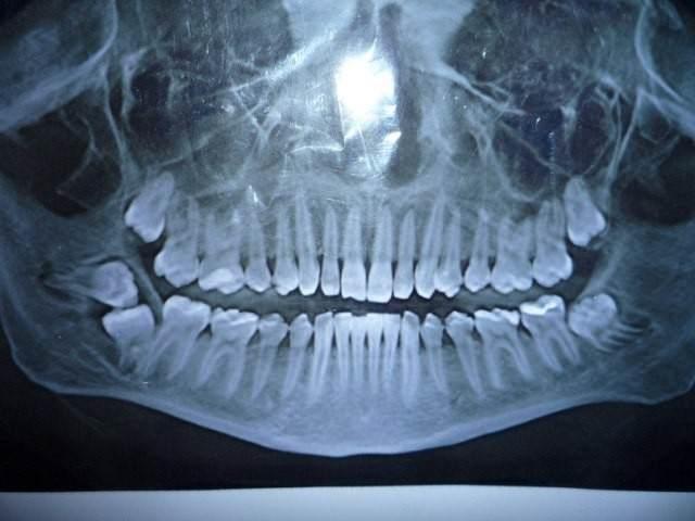 Рентген зубной полости