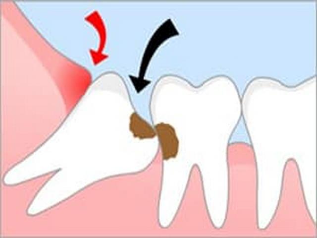 наслоиться на другой зуб