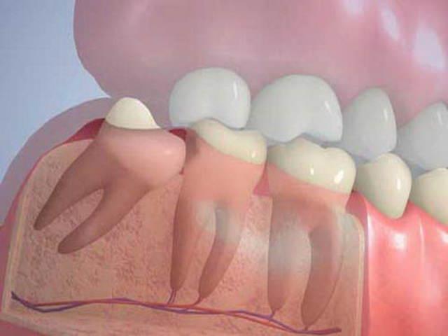 Зубы растут и не помещаются