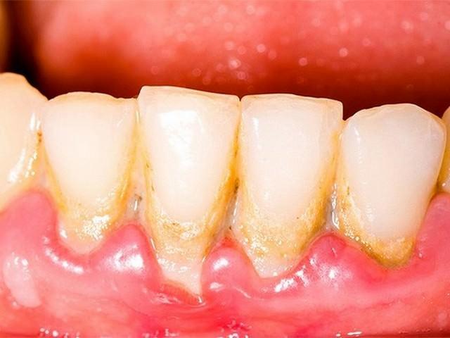Зубной камень на поверхности зубов