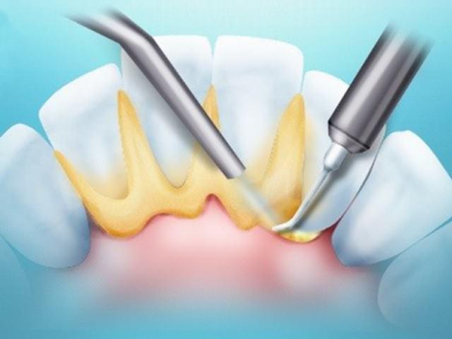 Схематично показан процесс устранения зубного камня с зубов