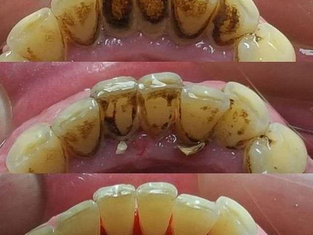 Процесс чистки зубного налета