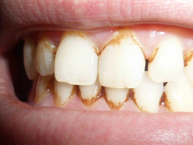 Зубной налет и камень на внешней стороне зубов