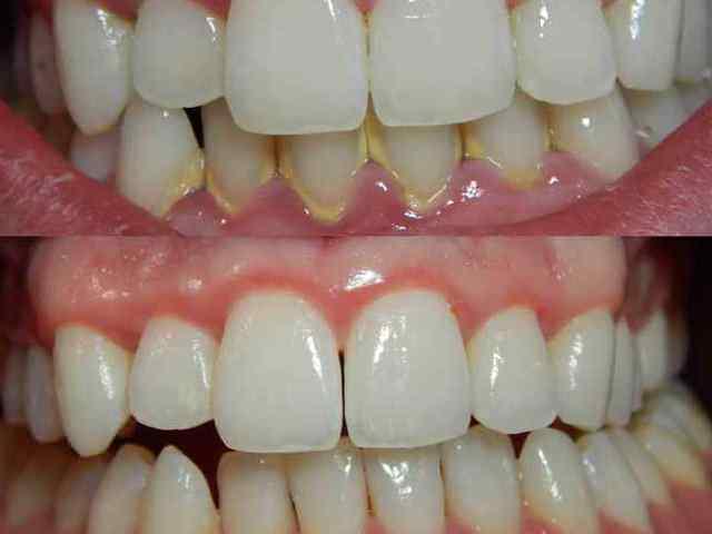 Разница между зубами с камнями и без