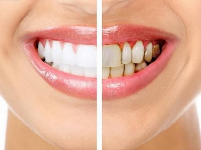 Разница между здоровыми и больными зубами