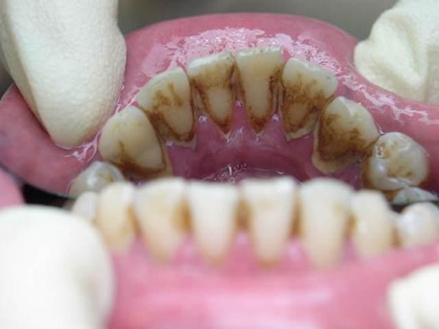 Зубной камень в полости рта