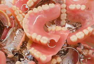 Как крепятся съемные зубные протезы