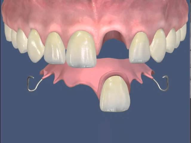 Схематично изображена установка съемного зубного протеза