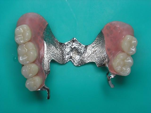 Протез, который крепится к здоровым зубам и имеет металлическую пластину
