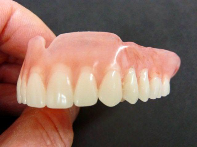 Протез для верхних передних зубов