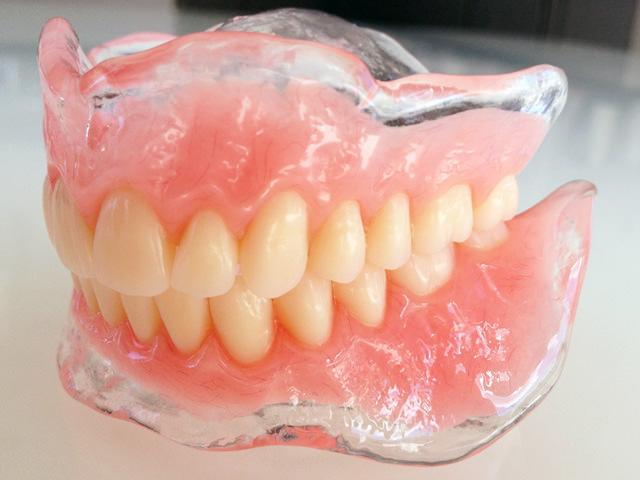 Протез для всей полости рта