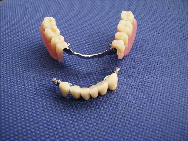 Зубной протез для нижней десны