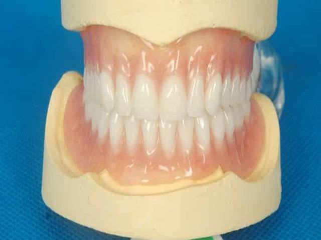 Композиты для зубных протезов