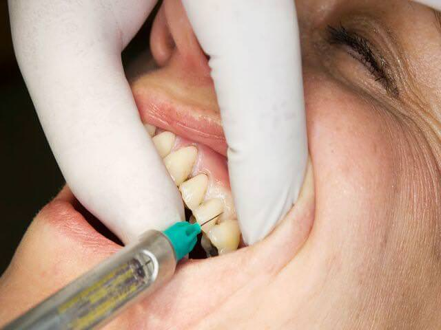 обезболивание зуба