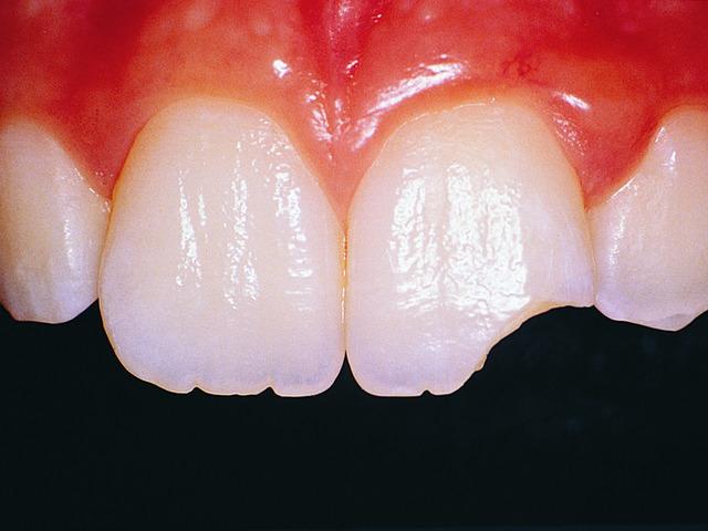 Результат скрежета зубов