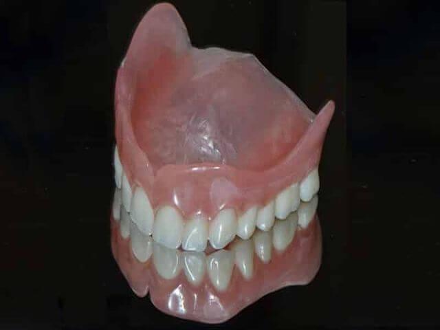 как отбелить ортодонтические конструкции