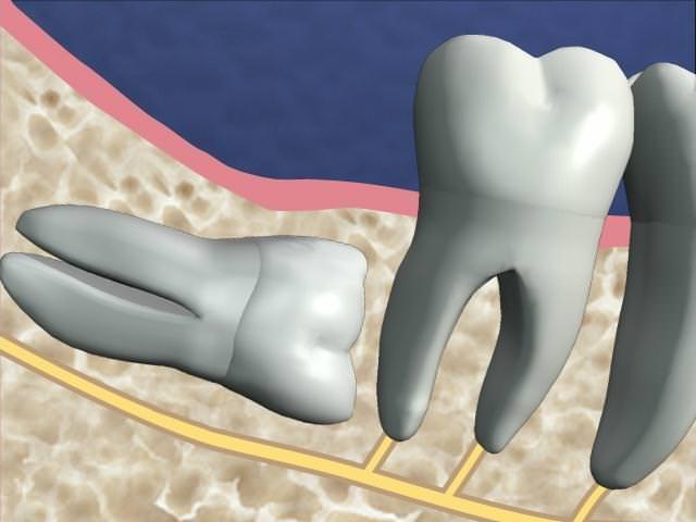 Изображение кривого роста зуба