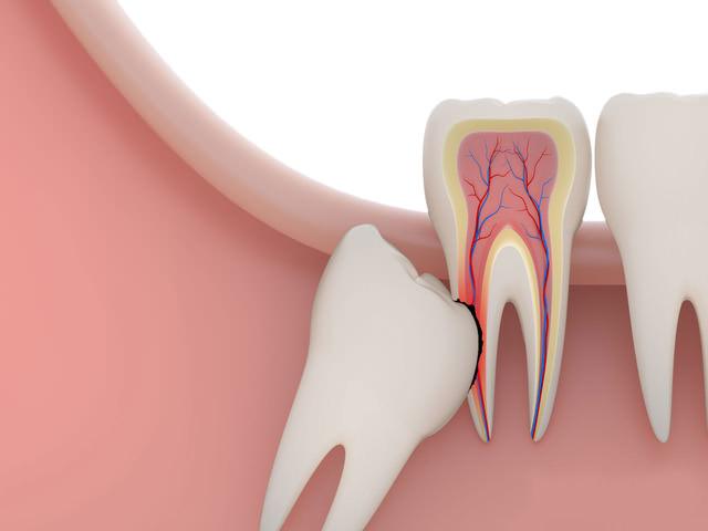 Причина удаления зуба мудрости