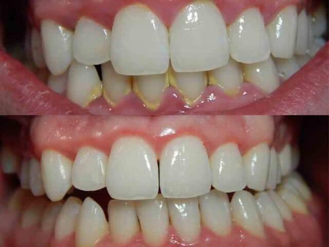 Зубной камень как избавиться