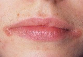 Чем лечить хейлит на губах: симптомы, фото, лечение в домашних условиях