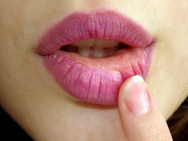 больные губы у девушки