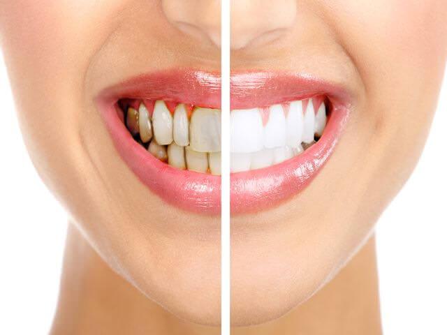 как дома удалить зубной налет