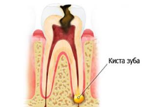 Киста на корне зуба — причины развития, симптомы