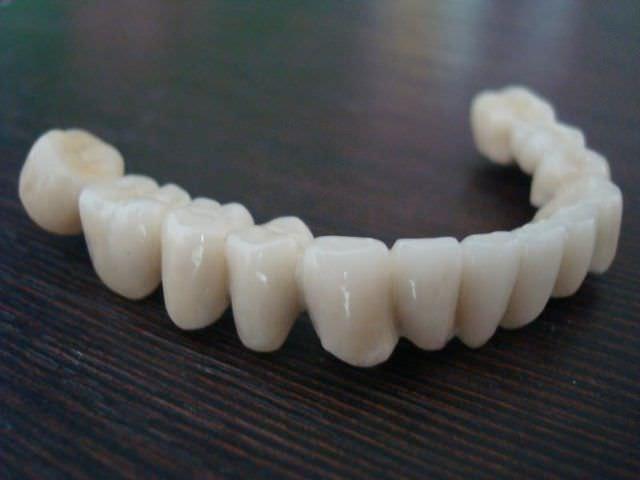 Материалы для протезирования зубов что лучше