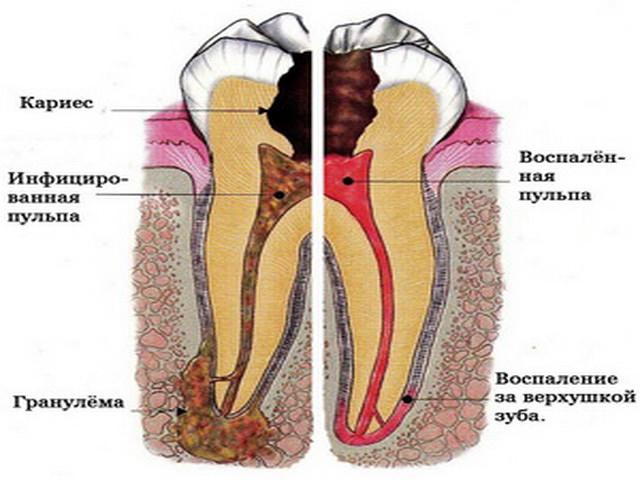 Чем прополоскать зуб при зубной боли в домашних условиях
