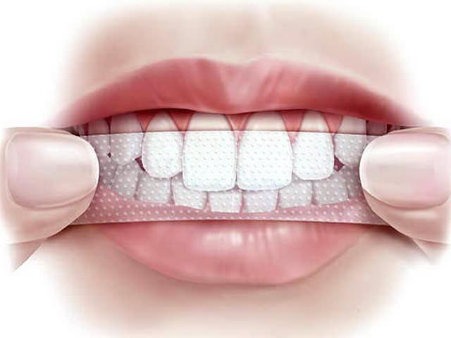 пластины для отбеливания зубов отзывы