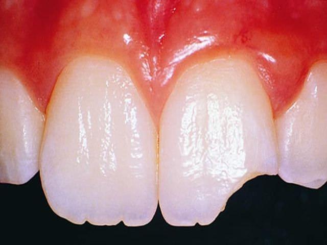 К чему снятся треснувшие зубы с кровью