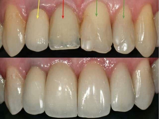 Трещина на зубе как лечить в домашних условиях