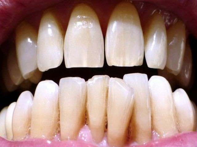 Образование дефекта на зубной эмали