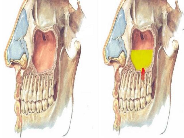 развитие остеомиелита и периостита