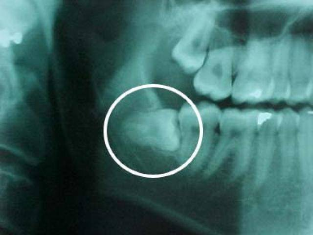 Осмотр зубов