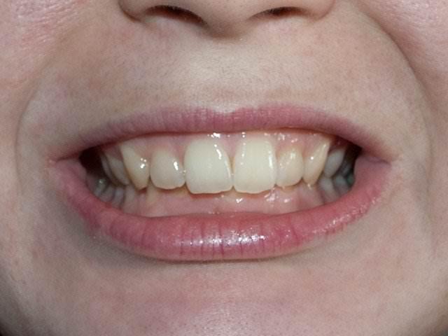 Последстви неправильного роста зубов мудрости
