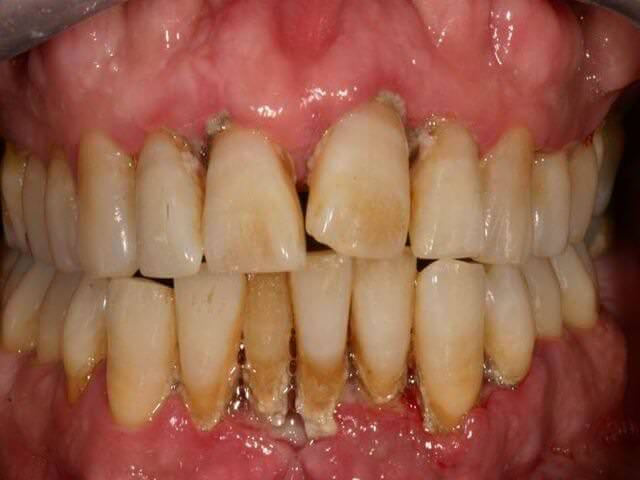 как устранить зубной камень