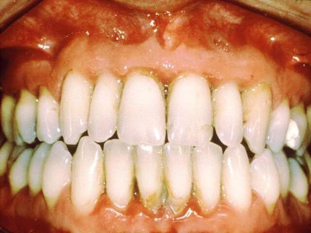 как самому снять зубной налет