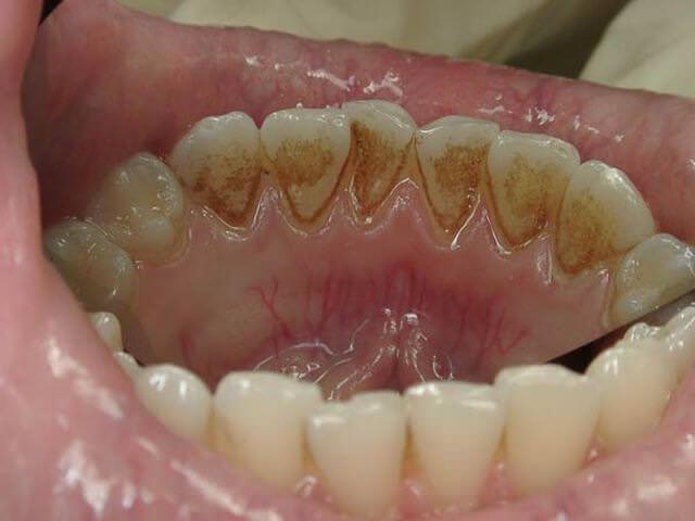 как снять зубной налет