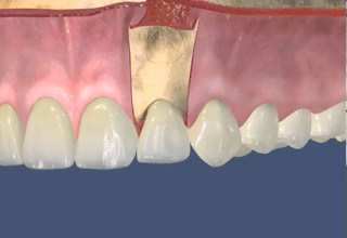 Сохранение зуба что такое резекция верхушки корня и сколько она стоит
