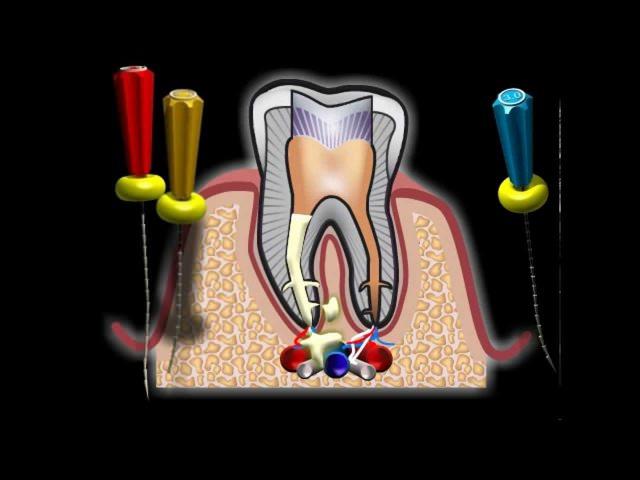 Зуб больной