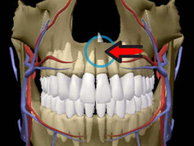 Процедура с зубом