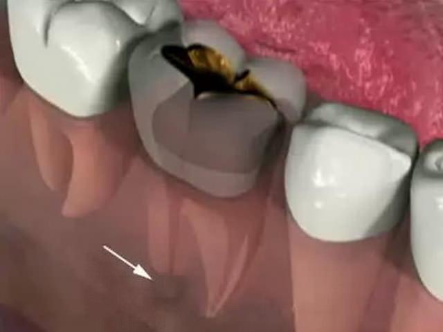 Как снять воспаление зуба