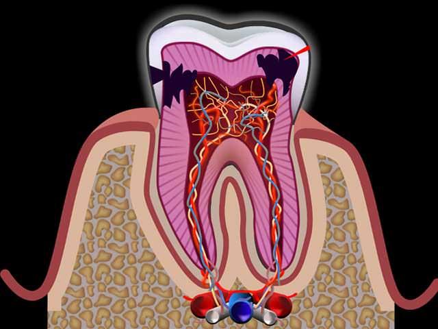 Воспаление зубного нерва причины диагностика и особенности лечения